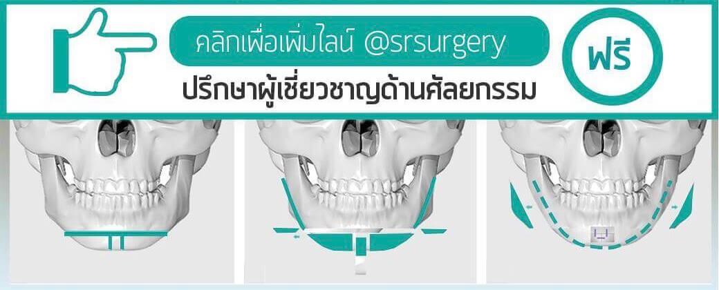 ปรึกษาศัลยกรรมกับผู้เชี่ยวชาญฟรี