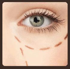 ศัลยกรรมเสริมใต้ตา เสริมโชคทุกด้านให้ผู้หญิง