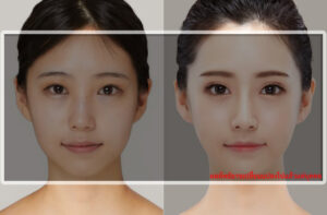 before-after-face-ศัลยกรรมใบหน้า-รีวิวศัลยกรรมหน้าเรียว