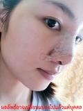 เสริมจมูก-ทำจมูกเกาหลี-ศํลยกรรม-ศัลยกรรม ใบหน้า