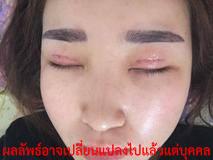 เสริมจมูก-ตา2ชั้น-ศัลยกรรม-ทำ ศัลยกรรม