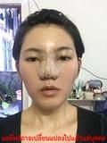 ทำ ศัลยกรรม-เสริมจมูก-ศัลยกรรม-เกาหลี
