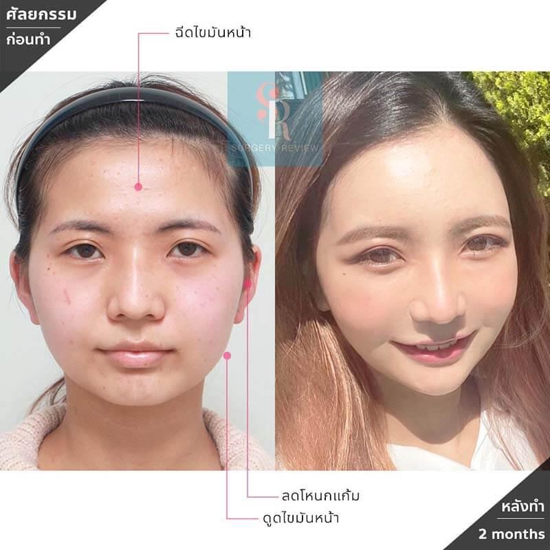 ทำโครงหน้าที่ Seoulface21