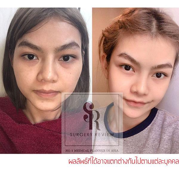 ผ่าตัดด้วยวิธีลดโหนกแก้ม-คนไทย