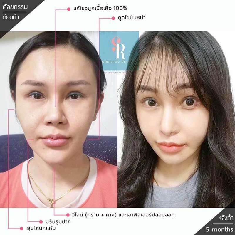 ศัลยกรรมลดโหนกแก้มแล้วใบหน้าดูอ่อนและเด็กลง