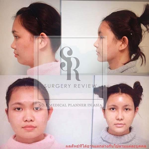 รีวิวศัลยกรรม-ฉีดไขมัน-Gyalumhan-surgeryrevview