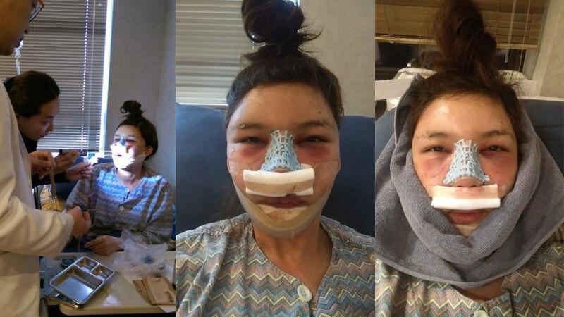ตรวจอาการ-น้องเมย์-หลังผ่าตัด