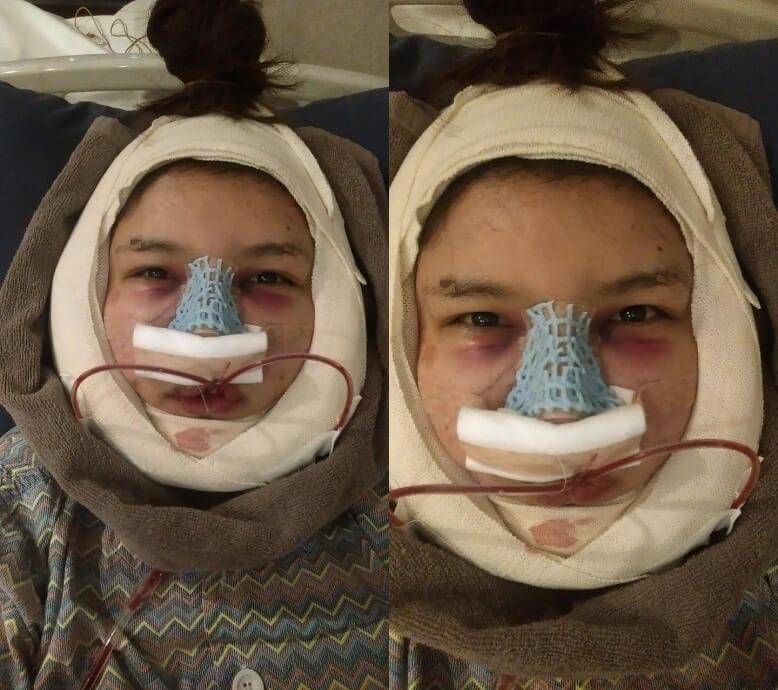 น้องเมย์-ออกจากห้องผ่าตัด