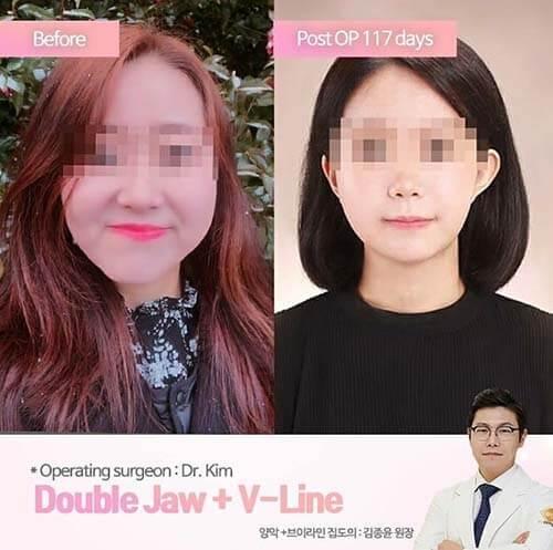 รีวิวผ่าตัดขากรรไกร เกาหลี