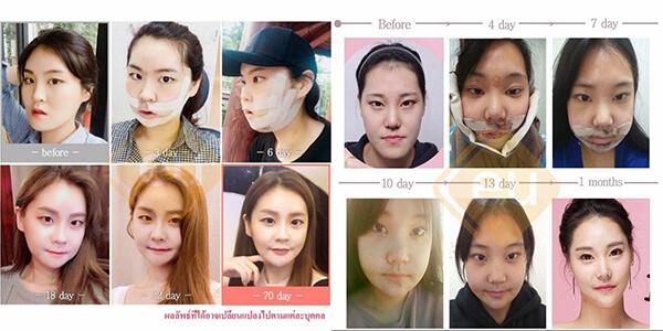 รีวิว เคสผ่าตัดแก้ไขขากรรไกรเกาหลี