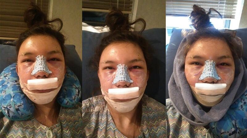 หลังจากผ่าตัด-วันที่-2