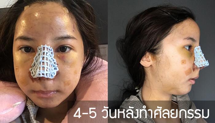 4-5-วัน-หลังทำศัลยกรรมเกาหลี