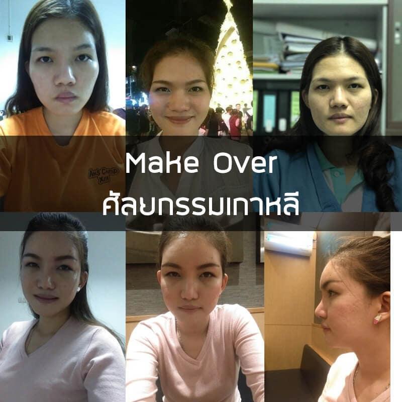makeover-น้องเมย์-ก่อน-หลัง