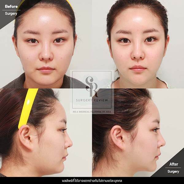 DR Kim Nam Ho Review 1