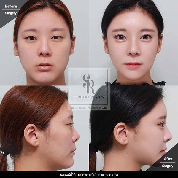 Dr Kim Nam Ho โครงหน้า และ ตา