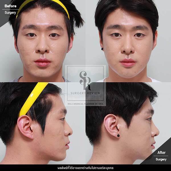 Dr Kim Nam Ho Review โหนกแก้ม และ มินิวีไลน์