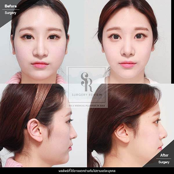 Dr Kim Nam Ho Review 2