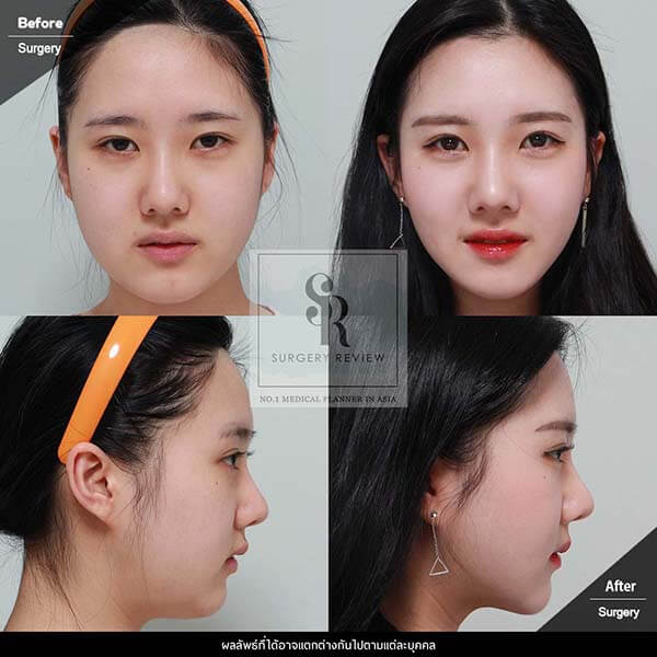 Dr Kim Nam Ho Review 3