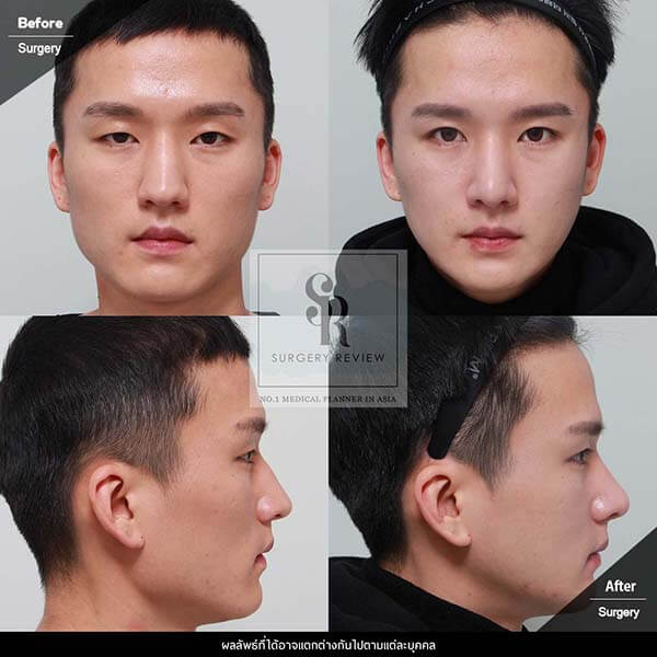 Kim Nam Ho Review โครงหน้า ตา จมูก