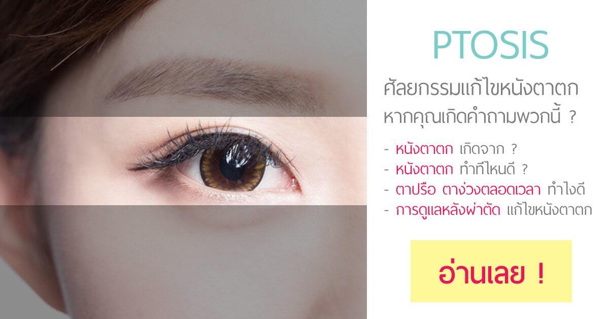 PTOSIS-แก้ไข-หนังตาตก