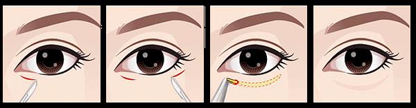 dolly-eye-ศัลยกรรม