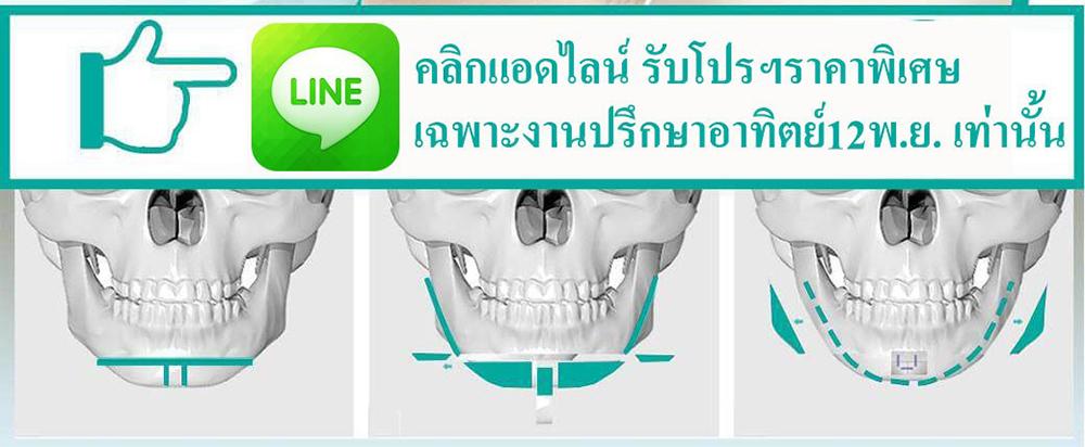 ปรึกษาศัลยกรรม-โปรโมชั่นศัลยกรรม