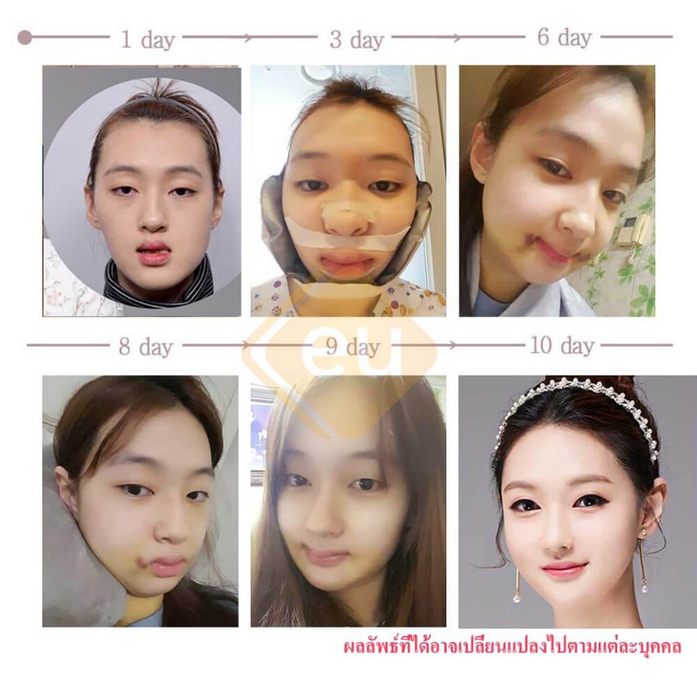 รีวิวศัลยกรรม-หมอ-คิม-eu