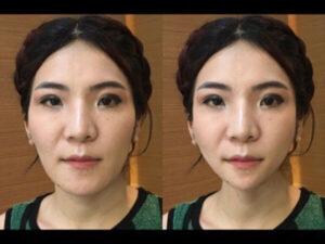 รีวิวศัลยกรรมเกาหลี คุณเหมย กับ โครงหน้า 3 มิติ