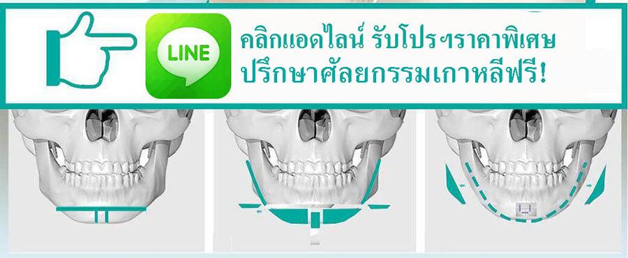 ปรึกษาศัลยกรรมเกาหลีฟรี-surgeryreview