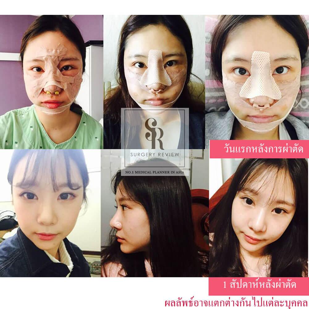 รีวิวศัลยกรรมเกาหลี-Gyalumhan-Plastic-Surgery