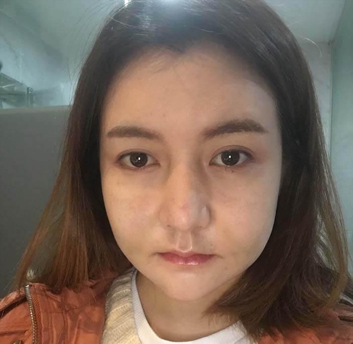คุณนุ่นช่วง 3 วันแรก หลังผ่าตัดศัลยกรรมเกาหลี