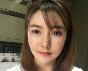 รีวิวศัลยกรรมเกาหลี คุณนุ่น ปรับโครงหน้า 3 มิติ ถอดซิลิโคนคาง หน้าเด็ก