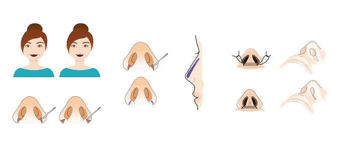 วิธีการตัดปีกจมูก