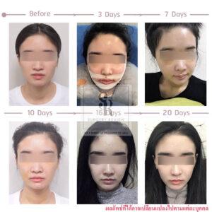 รีวิวศัลยกรรม คุณบี จัดฟันที่ไทย ผ่าตัดขากรรไกรที่เกาหลี
