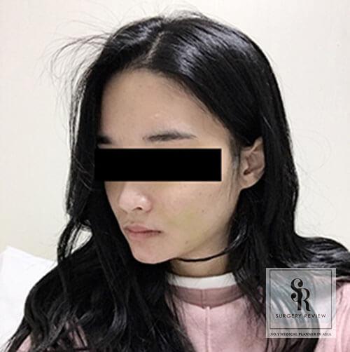 10วัน-ตัดไหมที่ข้างหู
