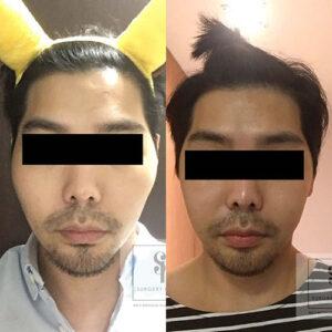 รีวิวศัลยกรรม ลดโหนกแก้มผู้ชาย By Dr.Kim (EU)