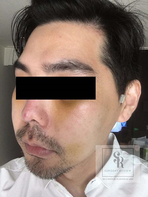 รูปด้านขวา-หลังผ่าตัดโหนกแก้ม-ผู้ชาย