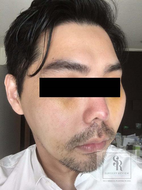 รูปด้านซ้าย-หลังผ่าตัดโหนกแก้ม-ผู้ชาย