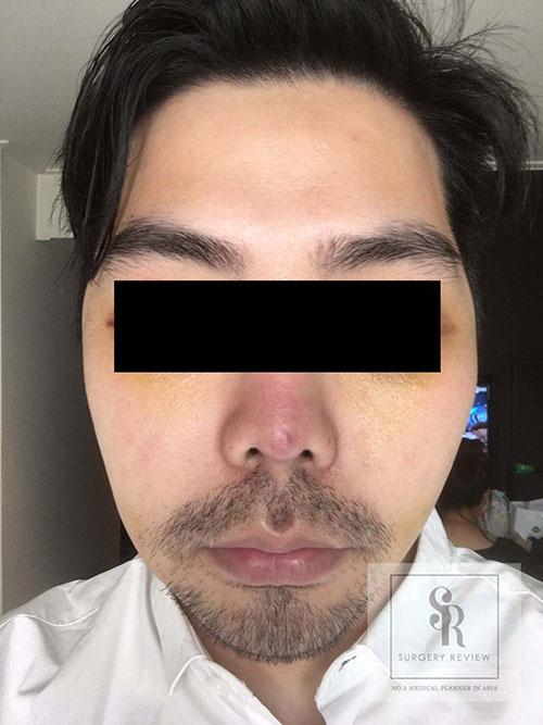 รูปด้านหน้า-หลังผ่าตัดโหนกแก้ม-ผู้ชาย