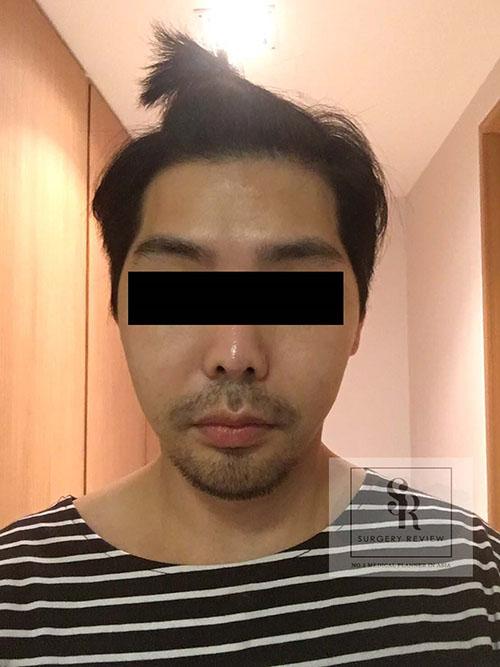 หลังผ่าตัดโหนกแก้ม-ครบ-1เดือน-ผู้ชาย