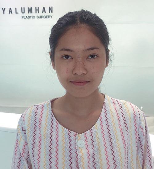 ก่อนผ่าตัดจมูกopenครั้งแรกที่ gyalumhan