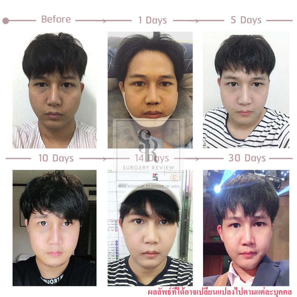 ศัลยกรรม ผู้ชาย ปรับโครงหน้าเกาหลี