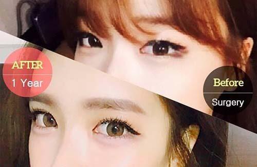 เปิดหัวตา ahn tae joo