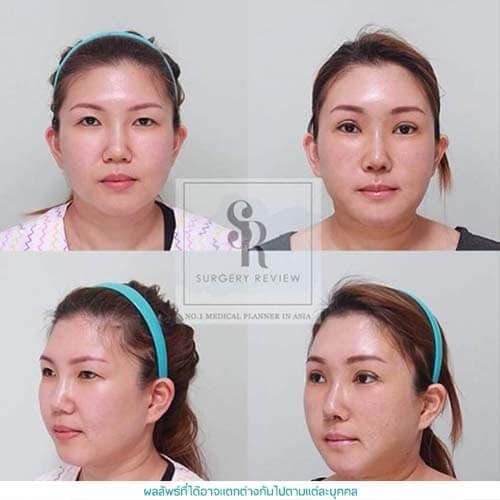 Facial Vaser Liposuction