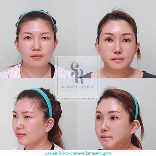 Facial Vaser Liposuction