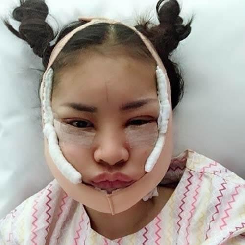 หลังผ่าตัดผ่านไป 4 ชั่วโมง