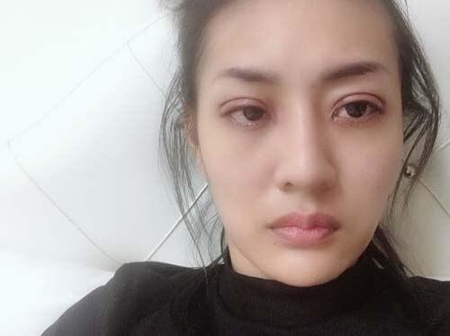 หลังศัลยกรรมตา 5 ชั่วโมง