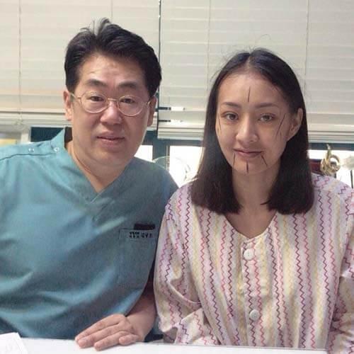 10 วันปรึกษาหมอ Kim อีกครั้ง ก่อนศัลยกรรมโครงหน้า