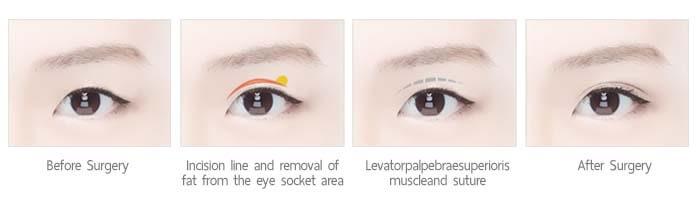 ตาสองชั้นแบบกรีด incision method