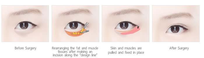 ยกกระชับใต้ตา under eye wrinkle